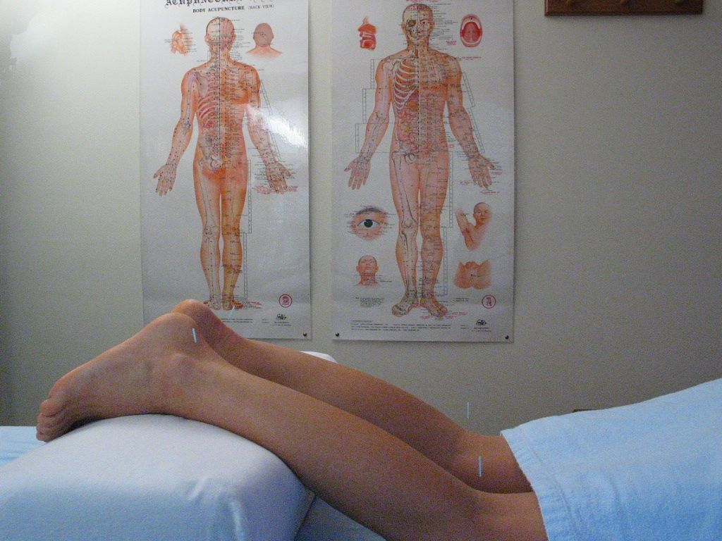 Acupuncture Treatment Minneapolis MN