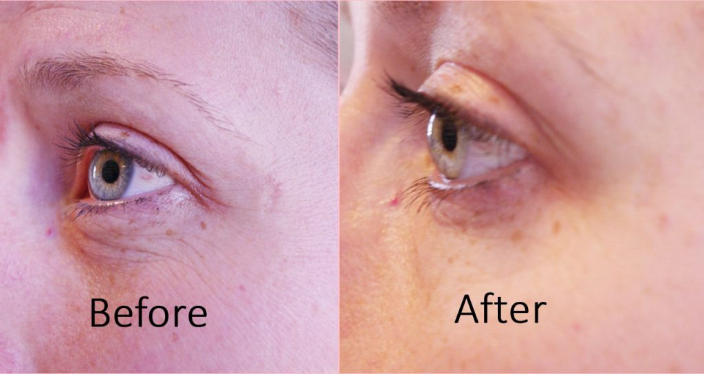 Eyes before and after facial rejuvenation.