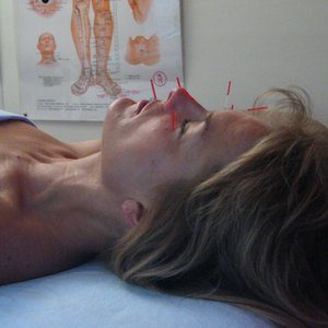 cosmetic acupuncture in edina mn